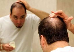 ریزش مو نشانه کدام بیماری است؟ + راههای درمان