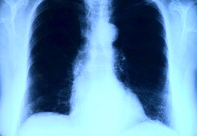 نشانههای هشداردهنده بیماری ریوی