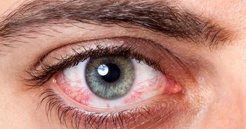 خطر جدیِ کرونا برای چشمها