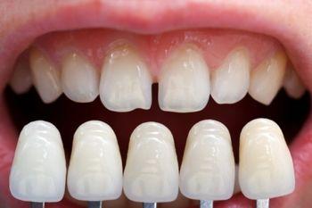 خوراکی هایی که دندان هایتان را زرد می کنند