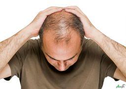 چند راهکار ساده برای پر پشت کردن موها