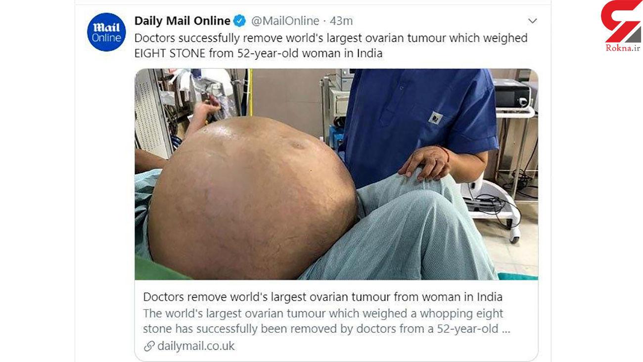 خارج کردن بزرگترین و باورنکردنی ترین تومور تخمدان از شکم یک زن + عکس