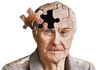نتیجه تصویری برای چرت زدن بیش از حد در طول روز از نشانه های آلزایمر