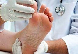 ارتباط بیماریها با تغییرات ظاهری در ناحیه پا
