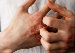درمان خشکی پوست ناشی از مصرف موادشوینده / مصرف بیش از اندازه گرمی ممنوع