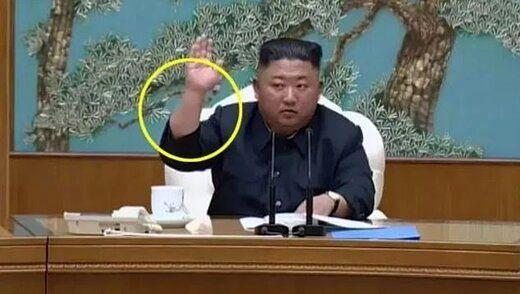 راز جای سوزن روی دست رهبر کره شمالی چیست؟/عکس