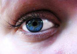 علائم و خطرات سکته چشمی