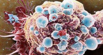 شایعترین عوامل سرطانزا در زندگی امروز