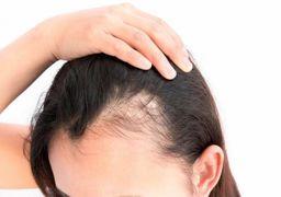 راهکارهایی برای جلوگیری از ریزش موی سر
