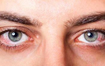 پنج راهکار ساده برای تقویت چشم