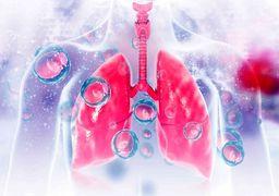 چند توصیه ساده برای قدرتمند کردن ریهها