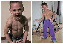 عجیبترین کودکان دنیا؛ پسری که سالی ۵ بار میمیرد!
