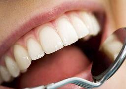 ورزش بر سلامت دندانها تاثیر منفی میگذارد!