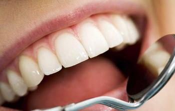 علتپوسیدگی دندان چیست؟