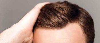 علت چرب شدن موی سر چیست ؟