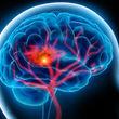 علائم سکته مغزی / سن سکته مغزی در ایران کاهش یافت